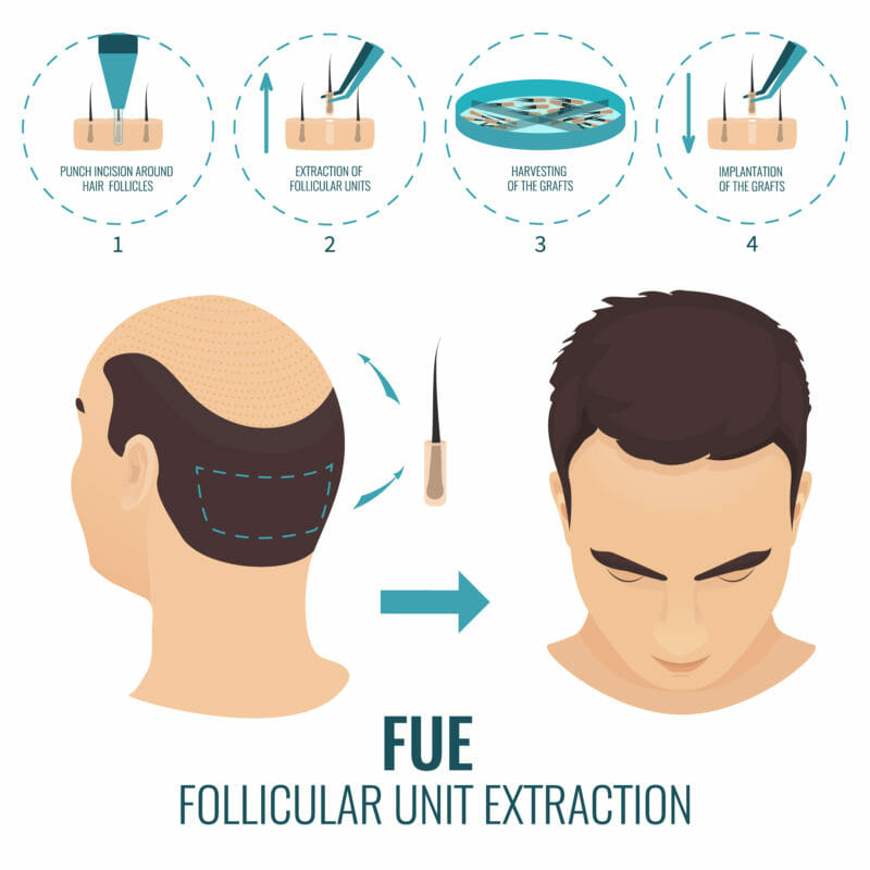 Follicular unit extraction คือ