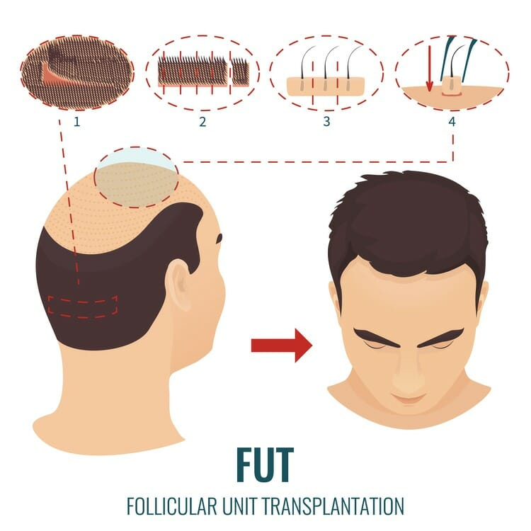 Follicular unit transplation คือ