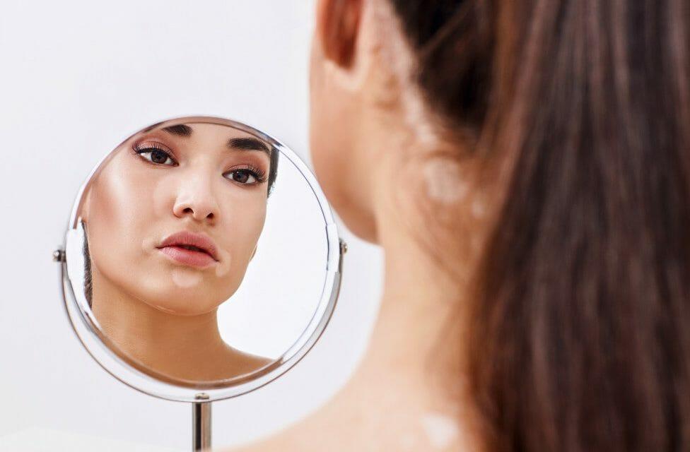 vitiligo treatment bangkok