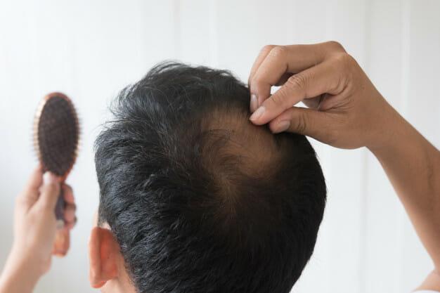 hair loss treatment bangkok