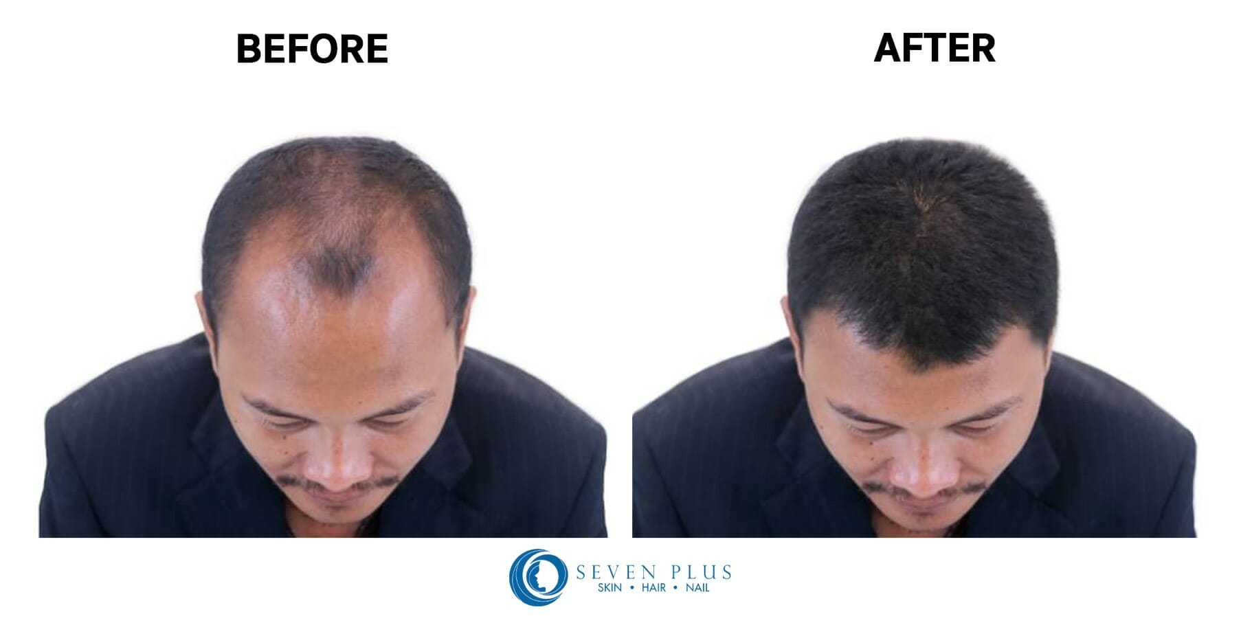 hair treatment before after reviews seven plus clinic