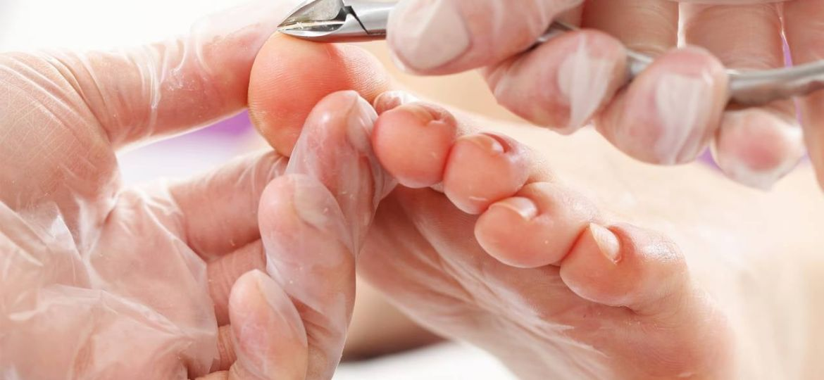 stop ingrown nails